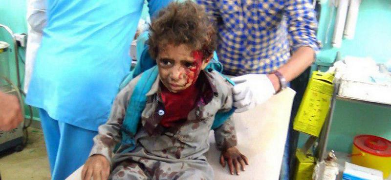 27758e8fd7 Il massacro dei bambini yemeniti, effettuato dai sauditi con armi italiane  e occidentali, viene opportunamente censurato dai media nostrani e da  quelli ...